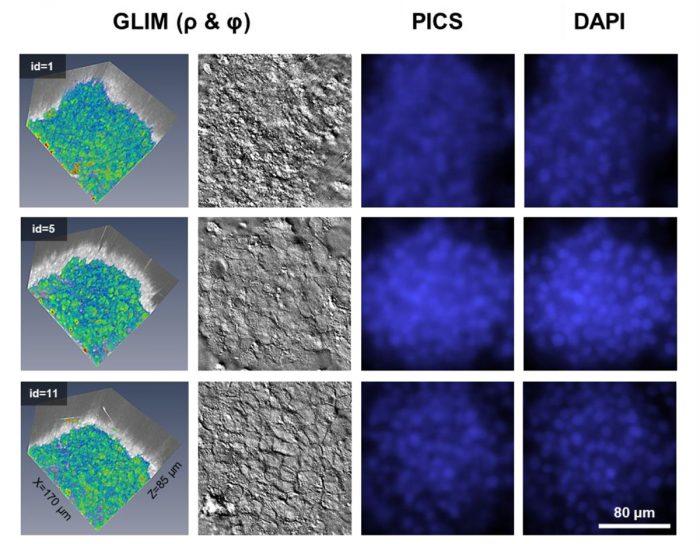 Phi Optics Phase Imaging with Computational Specificity (PICS)