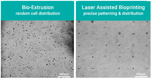 Laser assisted bioprinting - demonstrating precise positioning and patterning