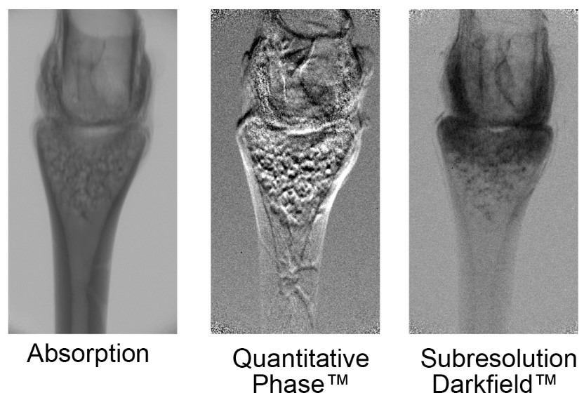 Shown above is a tri-contrast image of a frog's toe joint using the Sigray PrismaXRM; different features are clearly visible in each mode of contrast, such as the spongey tissue using the darkfield and musculature in phase contrast.